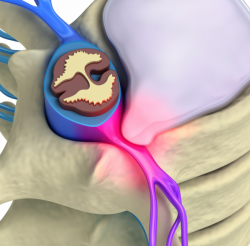 disk_herniation