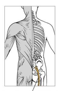 Sciatica,_Peripheral_Neuropathy